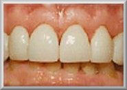 After Tooth Veneer Procedure